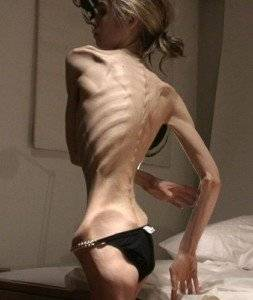 anorexica 37 kg