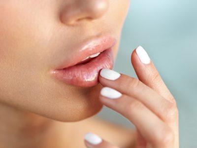 riduri în jurul gurii