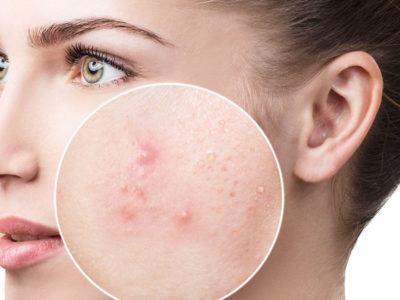 acneea