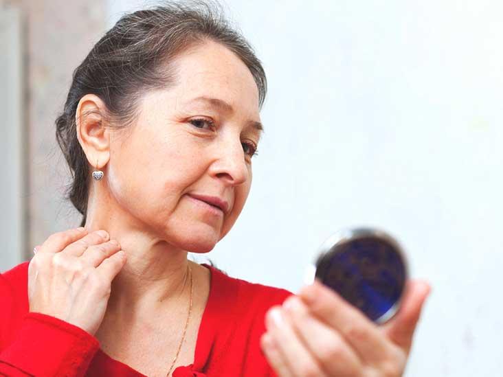 Cefalee in menopauza